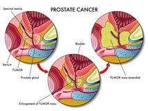 Prostate Cancer. Medical illustration of the effects of prostate cancer Stock Image