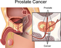 Prostate Cancer Royalty Free Stock Image