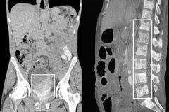 Prostate cancer, bone metastases. CT-scan reconstruction. Royalty Free Stock Image