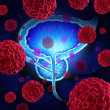 Prostate Cancer. Danger medical concept as cancerous cells in a male body attacking the reproductive system as a symbol of human malignant tumor growth Royalty Free Stock Photos