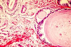 Photomicrograph of prostate hyperplasia stock images