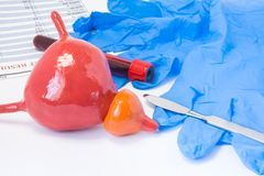 Prostate and urine bladder urology surgery concept. Model of bladder with prostate is near scalpel, surgical gloves and blood test. Tube with blood result stock photography