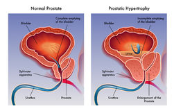 Prostatic hypertrophy. Illustration of the effects of prostatic hypertrophy Stock Images