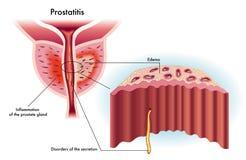 Prostatite Photographie stock libre de droits
