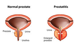 Prostatitis lizenzfreie abbildung