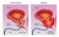Prostatitis Imágenes de archivo libres de regalías