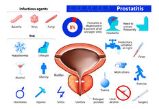 Prostatitis. benign enlargement of the prostate. Prostatitis. Benign prostatic hyperplasia. infographics in low color style. Medical Infographic set elements and Royalty Free Stock Image