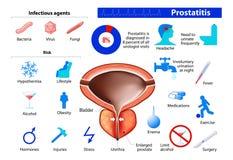 Prostatitis. benign enlargement of the prostate Royalty Free Stock Image