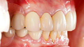 Prosthétique dentaire photo libre de droits