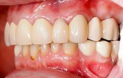 Prosthétique dentaire photographie stock libre de droits