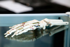 Prosthesis. A hand prosthesis on a table Stock Photo