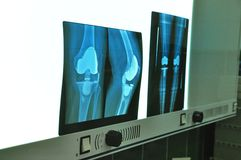 Prosthesis of the knee xray. Hospital operation Royalty Free Stock Images