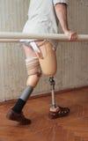 Prosthesis Stock Image