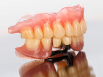 Prosthetic dental products Royalty Free Stock Image