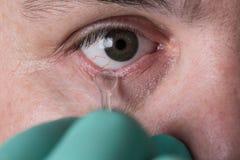 Prosthetic extraktion för Glass öga av okulär protes Royaltyfri Fotografi