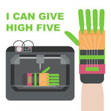 Prosthetic hand made by 3d printer. Plastic hand can give high five. Stock Image