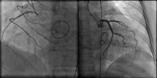 Prosthetic heart valve and contrasted coronary arteries on roentgenogram. Prosthetic mechanical heart valve on roentgenogram during coronary angiography Stock Photos