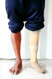 Prosthetic leg. Amputee wearing a prosthetic leg standing, close up view of their leg and the prosthesis Stock Image
