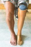 Prosthetic leg. View of a man wearing a prosthetic leg Royalty Free Stock Photos