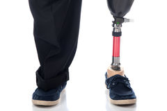 Prosthetic support. An adult man with a below knee amputation stands upright with his new prosthetic leg Stock Image