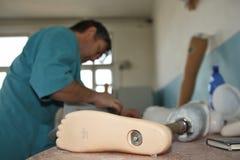 Prosthetist-ortopedico immagine stock