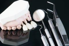 Prosthodontic model Obrazy Royalty Free