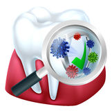 Protected Tooth and Gum Concept Stock Photography