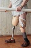 protesi Fotografie Stock