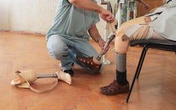 protesi Fotografia Stock Libera da Diritti