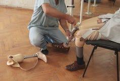 protesi Fotografia Stock