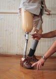 protesi Immagine Stock