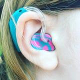 Protesi acustica con la muffa multicolore dell'orecchio Fotografia Stock Libera da Diritti