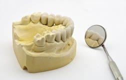 Protesi dentale immagini stock