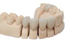 Protesi dentale Fotografie Stock Libere da Diritti