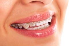 Protesi dentaria Fotografia Stock