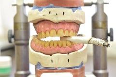 Protesi dentaria con una sigaretta fotografie stock