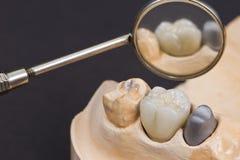 Protesi dentaria della cera Immagini Stock Libere da Diritti