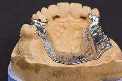 Protesi dentaria della cera Fotografie Stock