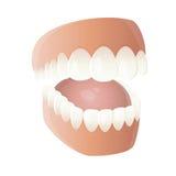 Protesi dentaria divertente del fumetto Fotografia Stock
