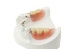 Protesi dentaria parziale Fotografia Stock Libera da Diritti
