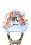 Protesi dentaria parziale della cera, mostra dentaria dei modelli Fotografia Stock Libera da Diritti