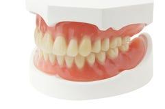 Protesi dentaria piena Immagini Stock Libere da Diritti