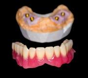 Protesi dentaria smontabile Fotografia Stock