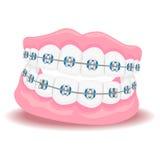 Protesi dentarie con le parentesi graffe illustrazione di stock