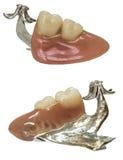 Protesi dentarie dentarie isolate su bianco Fotografia Stock Libera da Diritti