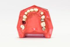 Protesi dentarie dentarie isolate su bianco Immagine Stock