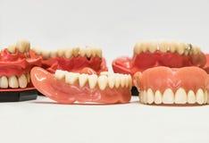 Protesi dentarie dentarie isolate su bianco Fotografia Stock