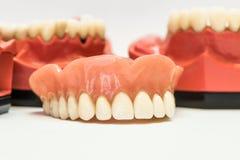 Protesi dentarie dentarie isolate su bianco Fotografie Stock