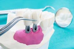 Protesi e strumenti dentari immagini stock libere da diritti