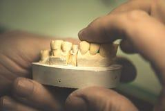 proteza dentystycznego Obraz Royalty Free